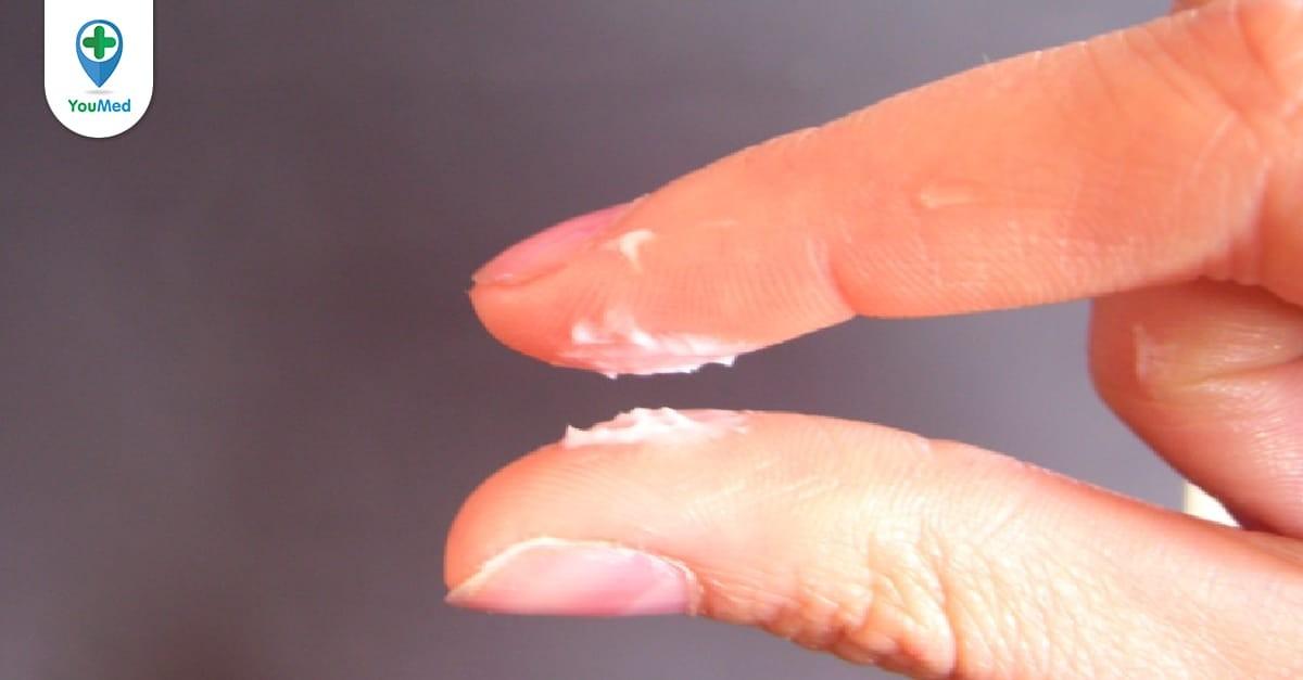Bựa bẩn sinh dục có nguy hiểm không?