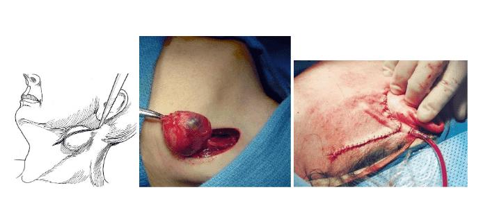 Phẫu thuật cắt bỏ nang khe mang