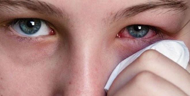 Triệu chứng của viêm giác mạc