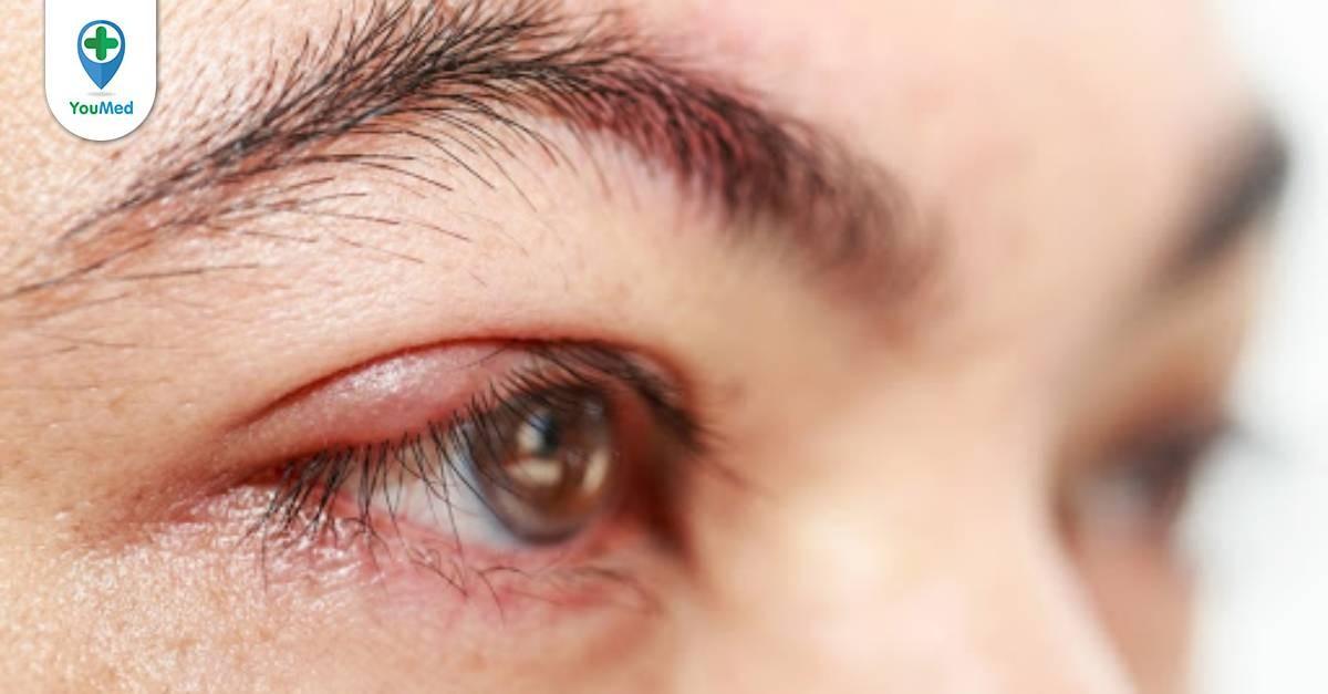 TOP 3 loại thuốc nhỏ mắt tốt trị mụt lẹo hiện nay