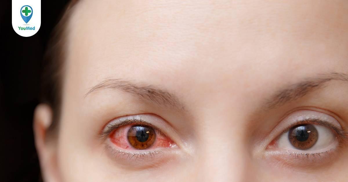 Mách bạn thuốc nhỏ mắt trị viêm giác mạc hiệu quả