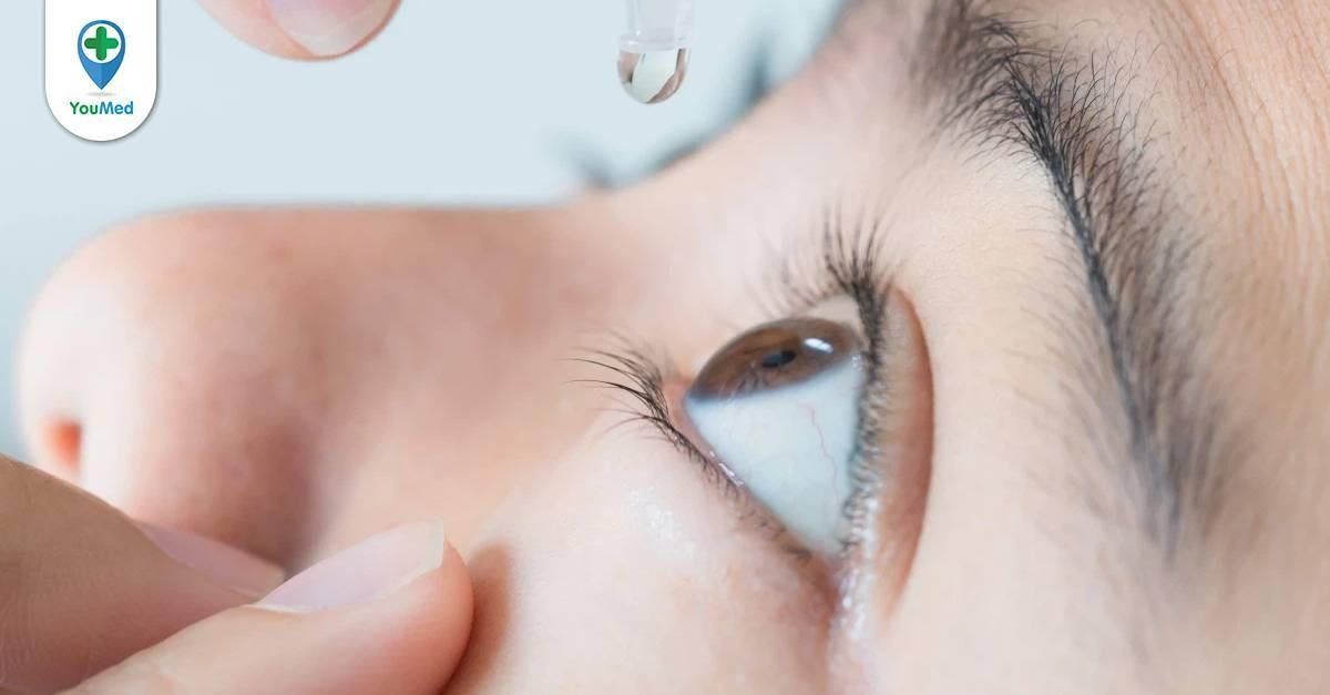 Phân loại các loại thuốc nhỏ mắt tốt theo nhóm bệnh