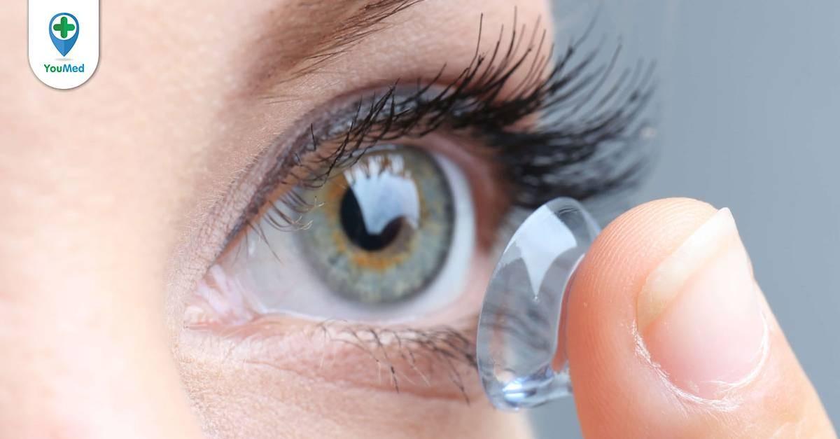 Đeo kính áp tròng dùng thuốc nhỏ mắt nào? Lời khuyên từ Bác sĩ