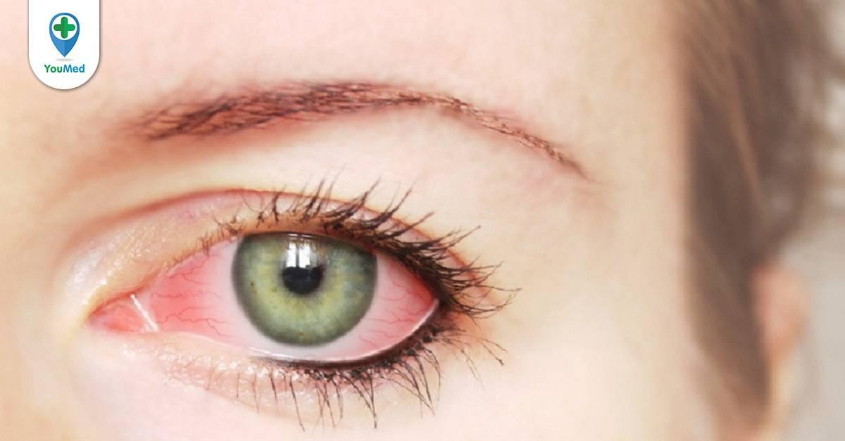 Đau mắt đỏ nhỏ thuốc gì? và lưu ý khi sử dụng từ Bác sĩ