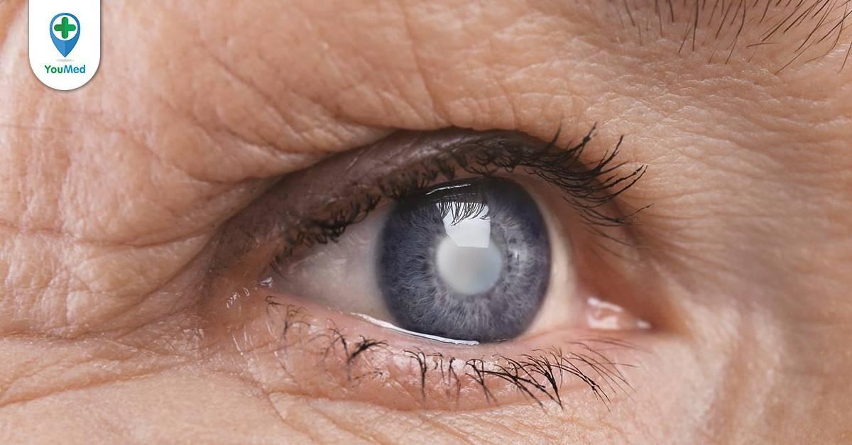 Có thuốc nhỏ mắt trị đục thủy tinh thể? Hướng điều trị của Bác sĩ