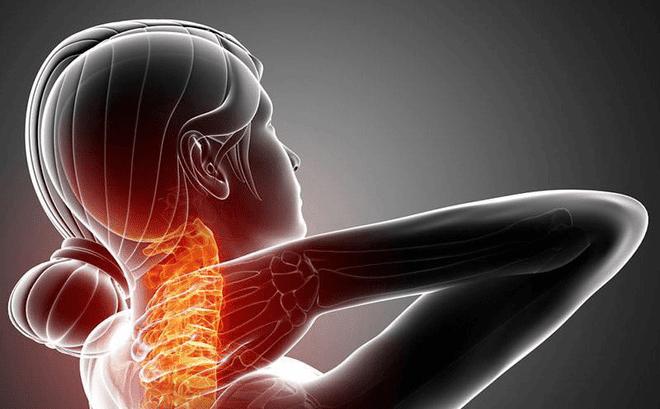 Thuốc Tizanidine có công dụng trong điều trị đau do co cơ