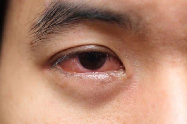 Triệu chứng đau mắt hàn cần chú ý nhận biết sớm