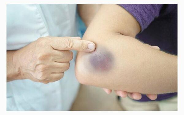 Dùng dây bông xanh giã nát, đắp ngoài có khả năng làm tan máu bầm.