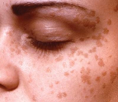 Tăng sinh thượng bì nhiều ổ vùng mặt