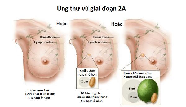 Giai đoạn 2 của ung thư vú