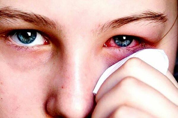 sai lầm khi sử dụng thuốc nhỏ mắt