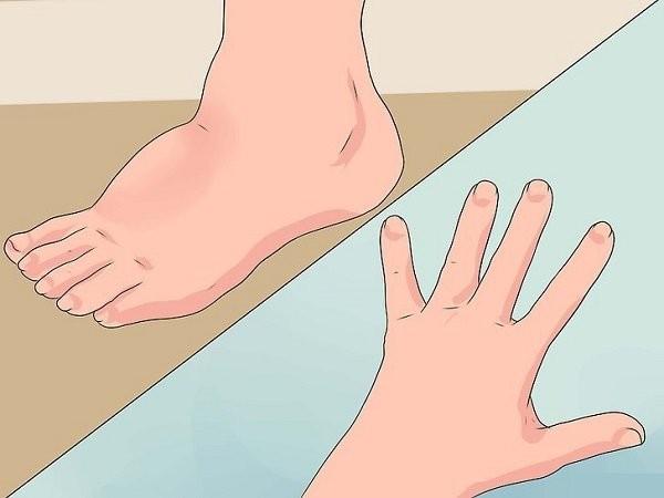 Nổi hạch ở tay chân được dùng để mô tả khối sưng bất thường
