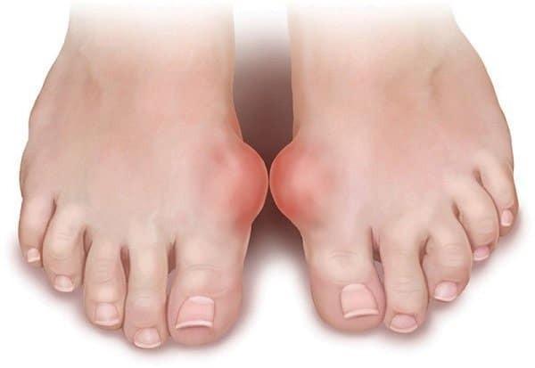Gout gây viêm sưng ở các khớp, tạo các cục u sưng đỏ đau.