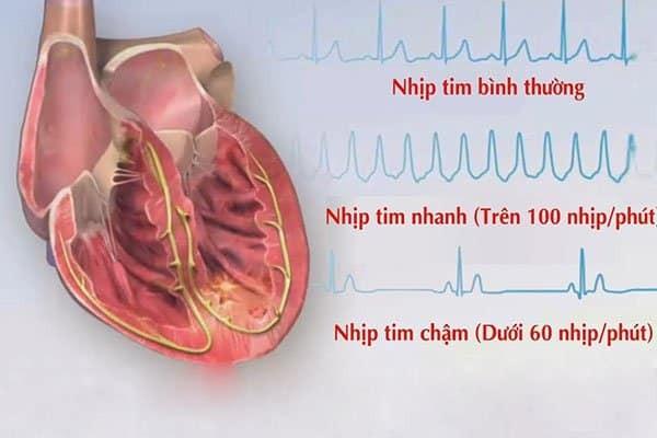 Rối loạn nhịp tim là tình trạng nhịp tim đập bất thường