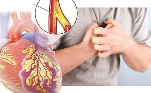 Bị suy tim và hẹp động mạch vành được sử dụng loại thuốc nào?