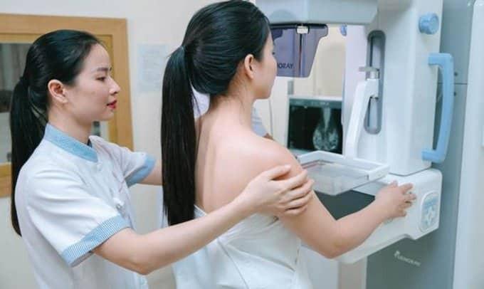 Phương pháp chụp nhũ ảnh để chẩn đoán ung thư vú