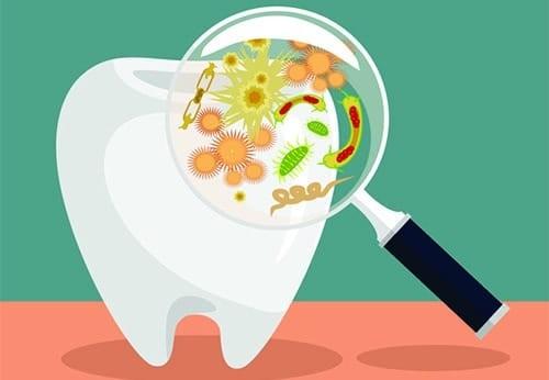thuốc kháng sinh răng