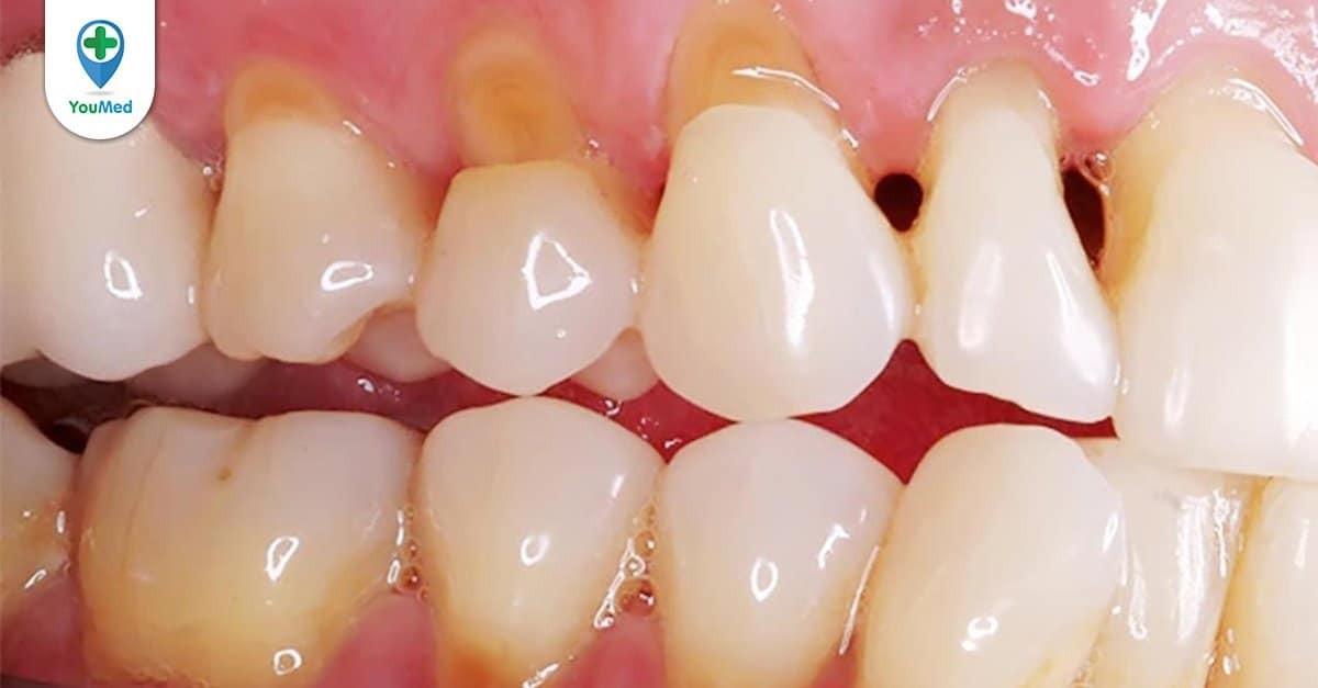 5 cách chữa sâu răng dân gian có thể bạn chưa biết