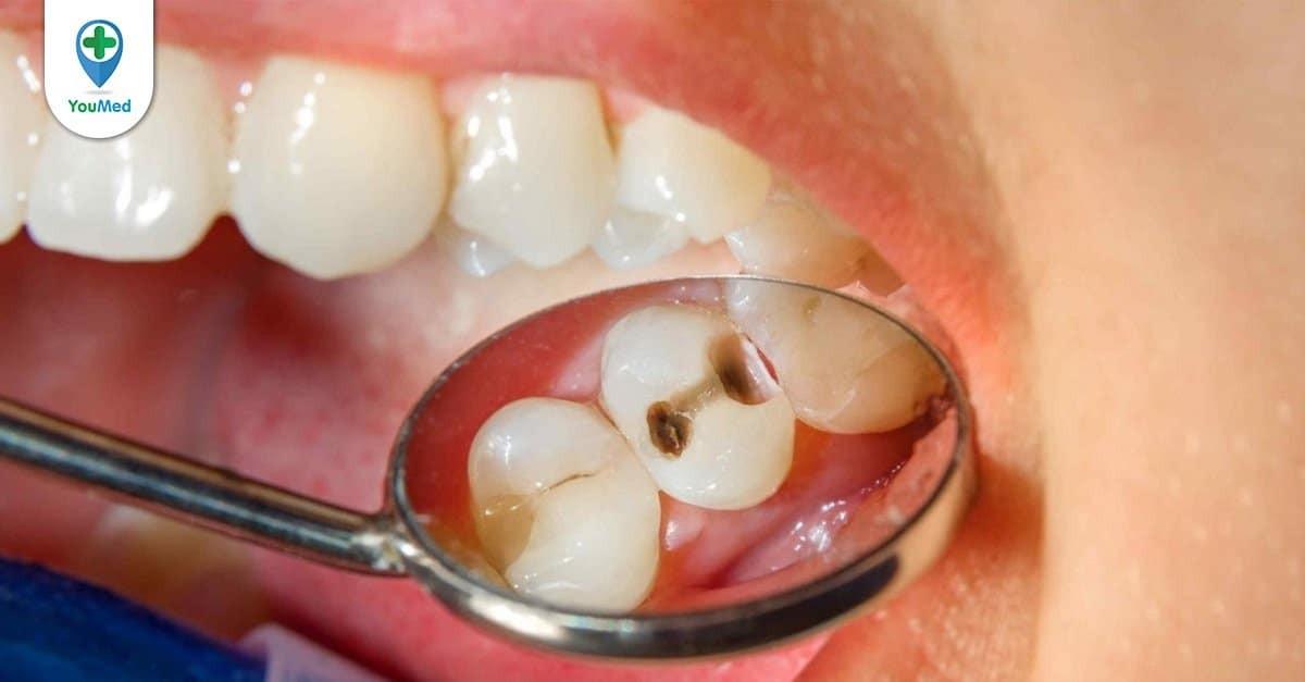 Bác sĩ bật mí những cách trị sâu răng tại nhà cho bạn
