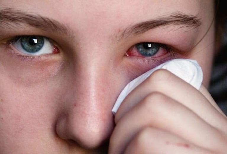 Khi tiếp xúc với những chất gây kích ứng, mắt có thể ngứa và đỏ