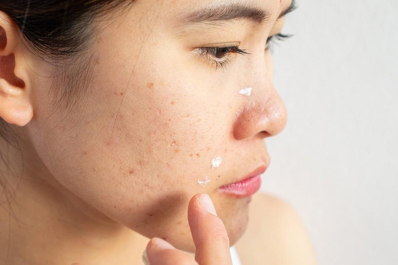 làn da của phụ nữ dễ lão hóa sớm, giảm độ đàn hồi, lỗ chân lông to, xuất hiện nám da, đồi mồi