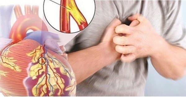 Trái tim của người mắc bệnh mạch vành