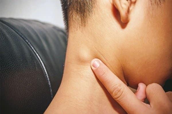 Nổi hạch sau gáy là triệu chứng cho thấy có nhiễm trùng hoặc sự xâm nhập của tác nhân lạ vùng đầu cổ