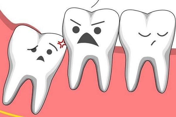 Răng khôn