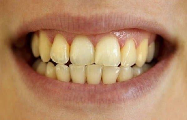 Tác dụng phụ răng xỉn màu