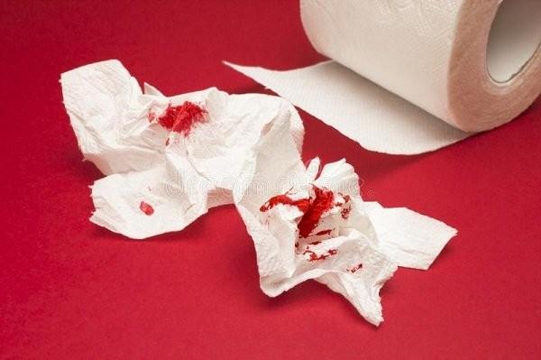 Tiêu ra máu dính trên giấy vệ sinh