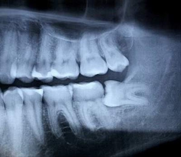 Hình ảnh X- Quang răng khôn