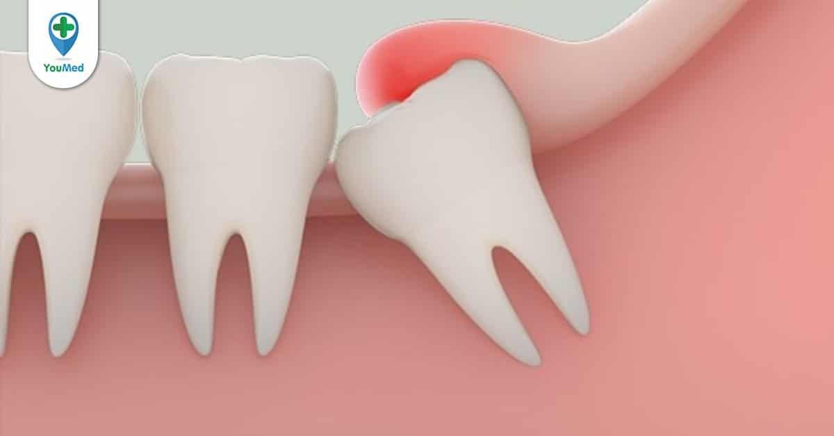 Đau răng khôn và những cách giảm đau bạn nên biết