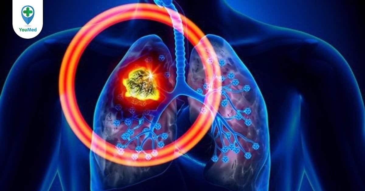 Cùng bác sĩ tìm hiểu về ung thư phổi tế bào nhỏ