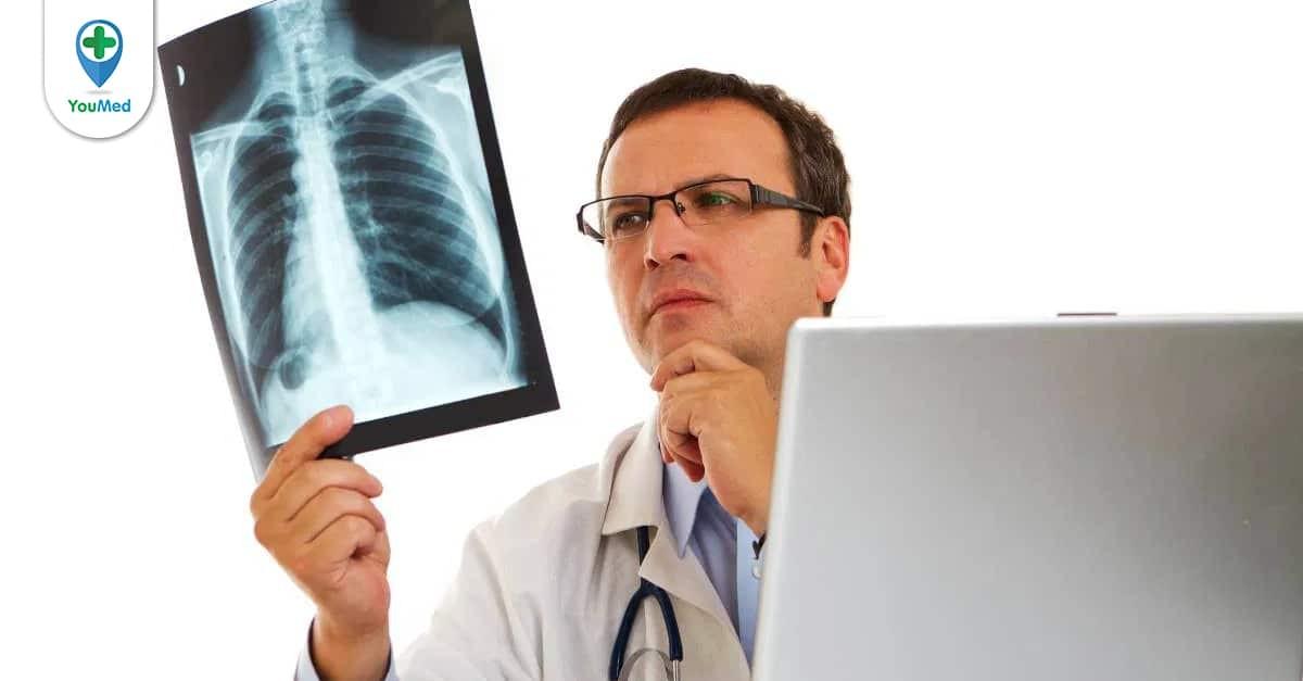 Đặc điểm, dấu hiệu và cách điều trị ung thư phổi giai đoạn 2