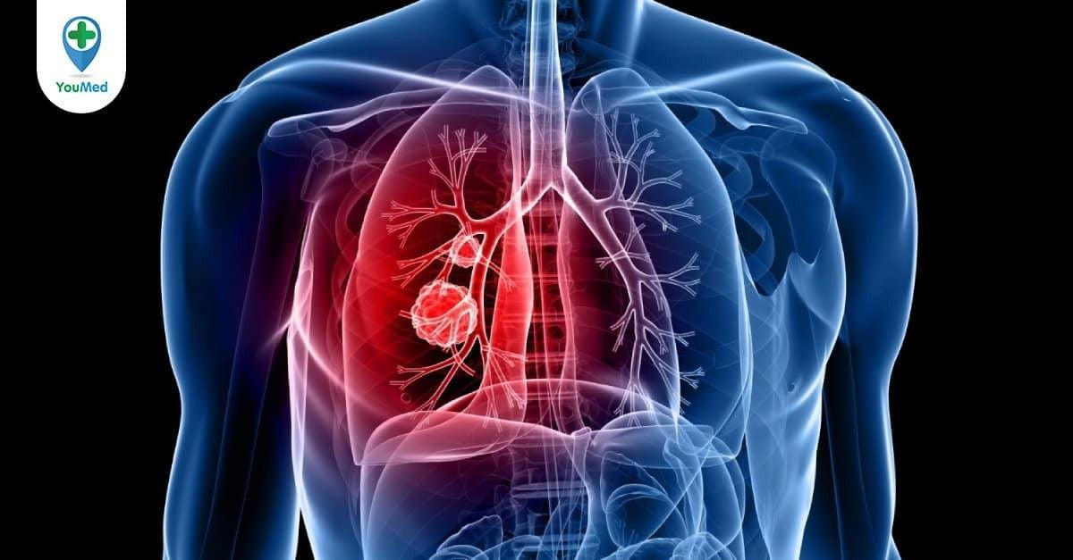 Đặc điểm, dấu hiệu và cách điều trị ung thư phổi giai đoạn đầu