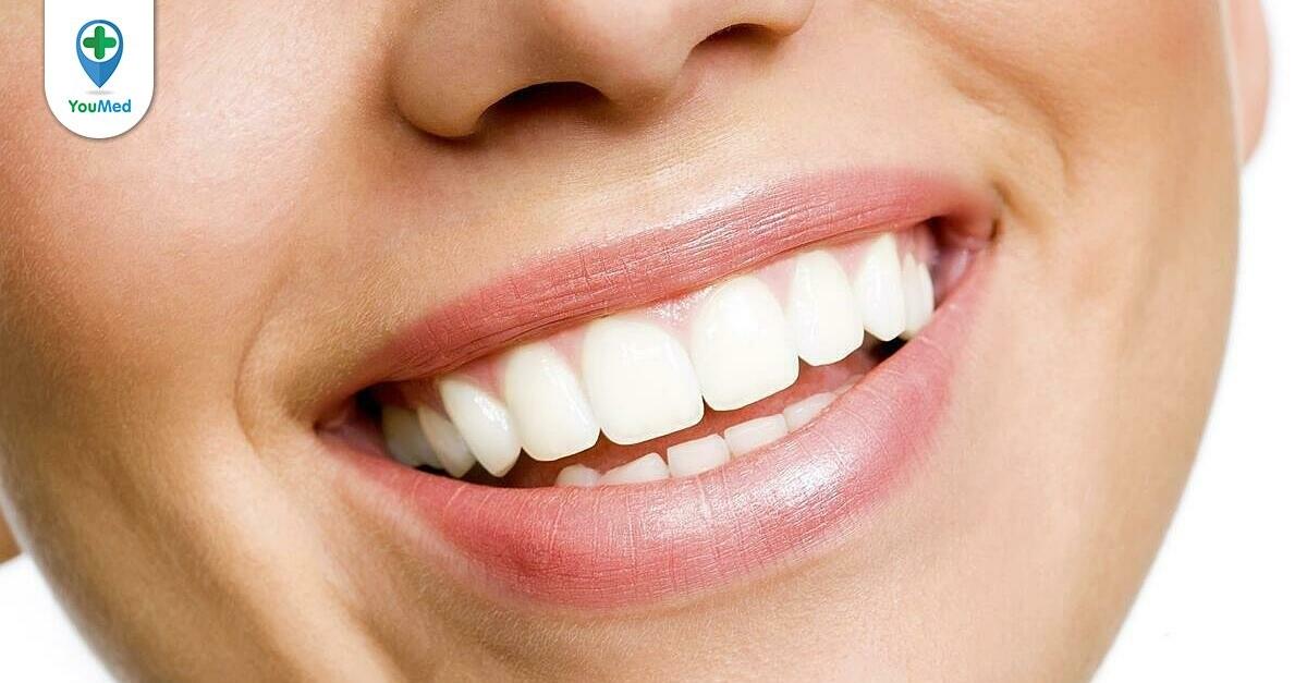 13 Thực phẩm làm trắng răng mà bạn nên biết