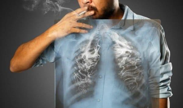 ung thư phổi sống được bao lâu phụ thuộc vào thói quen hút thuốc lá
