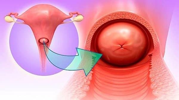 Hình 1: Viêm cổ tử cung là bệnh lý viêm nhiễm do sinh vật hoặc các kích ứng dẫn đến viêm nhiễm vùng cổ tử cung