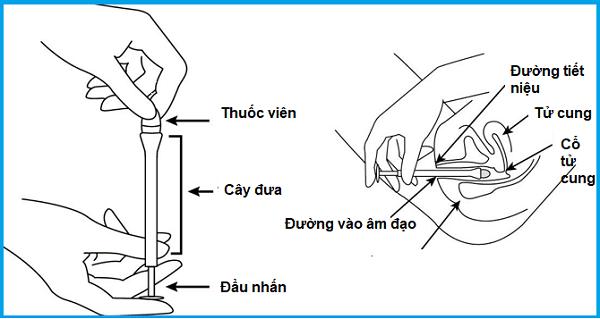 Hình 3: Cách đặt thuốc viêm cổ tử cung dạng viên