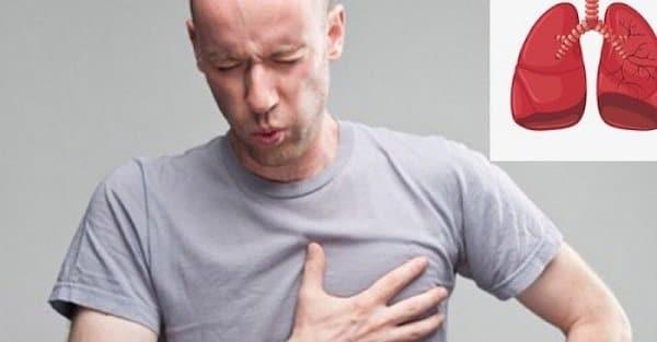 Đau tức ngực phải có thể là dấu hiệu ung thư phổi giai đoạn 3