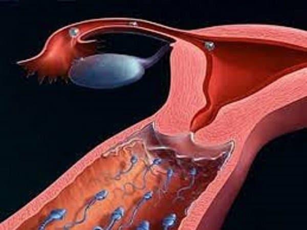 Viêm âm đạo cản trở quá trình di chuyển của tinh trùng