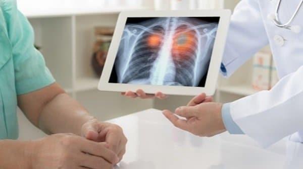 Bệnh ung thư phổi có lây không là câu hỏi được khá nhiều người quan tâm