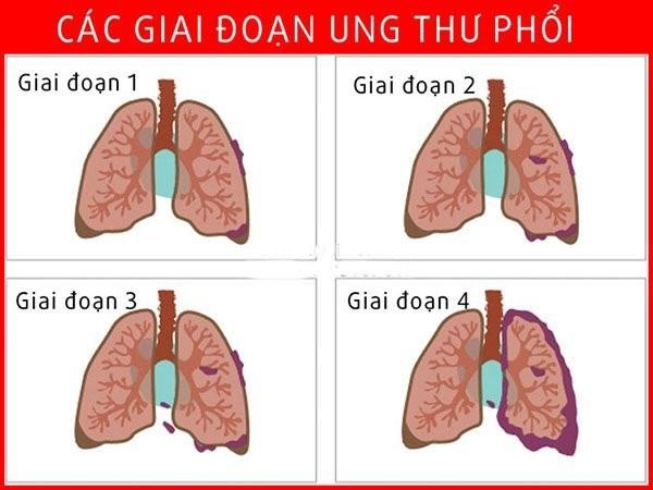 ung thư phổi giai đoạn 2