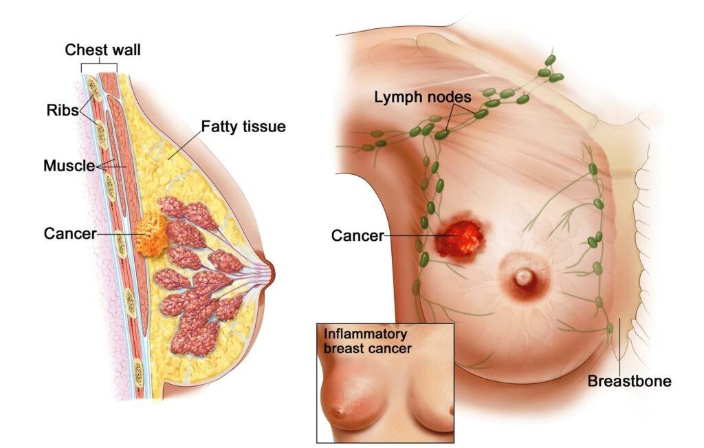 Ung thư vú là gì 1