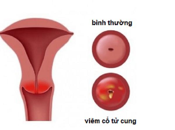 Hình ảnh cổ tử cung bình thường và viêm cổ tử cung.