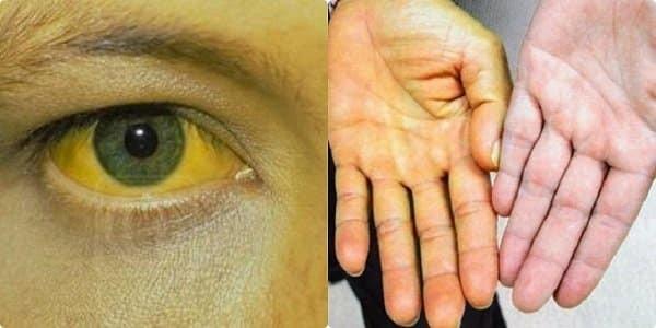 Vàng da, vàng mắt là dấu hiệu cảnh báo ung thư phổi di căn gan
