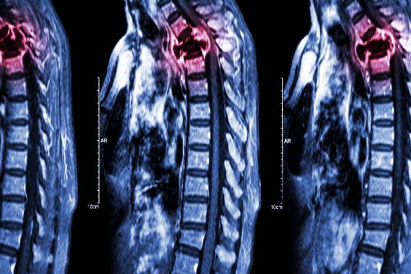 Ung thư phổi di căn xương