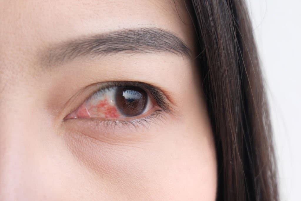 Đỏ mắt là một trong những tình trạng của thiếu vitamin B2