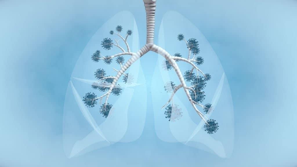 Ung thư phổi không tế bào nhỏ là dạng ung thư phổi phổ biến nhất