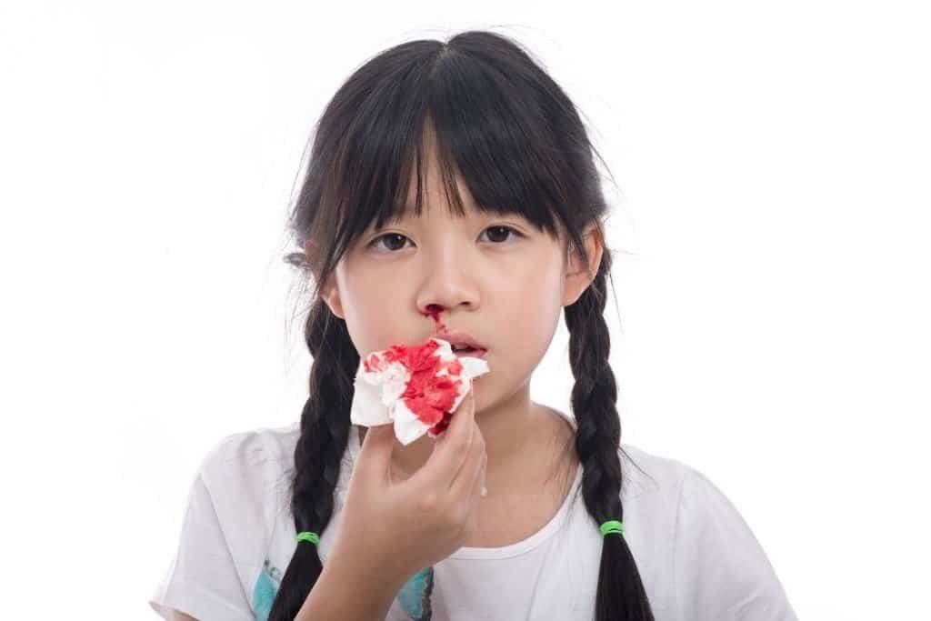 Chảy máu mũi cũng là triệu chứng của thiếu vitamin K
